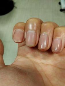 爪割れ防止のための男性ネイル